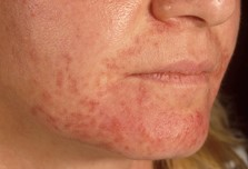 periorale-dermatitis